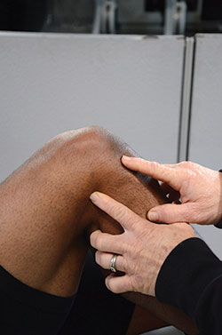 Lateral Joint Line: This area of the knee is considered the lateral joint line. Structures that are injured due to a heel hook may incorporate the Lateral Collateral Ligament, Lateral Meniscus, in addition to, Posterior Cruciate Ligament and Arcuate Ligament Complex.