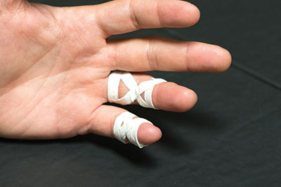 For injured fingers, repeat this on any affected joints. You can do X-taping on either the main, larger joint or the smaller one near the tip of the finger.